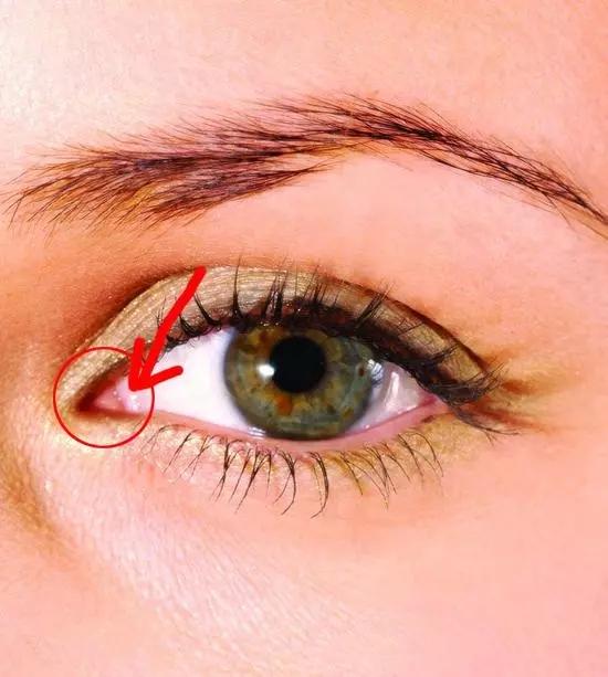 眼整形可不只是做个双眼皮