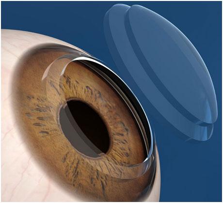 角膜也会受伤,警惕这几种原因?