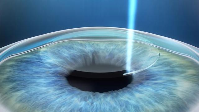 春城晚报报道:教育部:鼓励大学毕业生参军入伍 华山眼科专家:别让视力问题成为阻碍