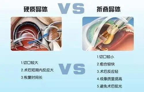 昆明高度近视的白内障患者选择什么人工晶体适合?