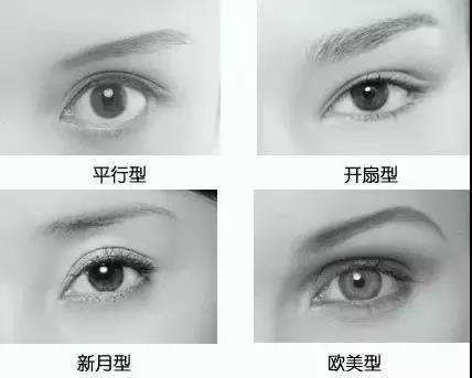 埋线还是切开?华山眼科专家揭秘重睑手术的秘密!