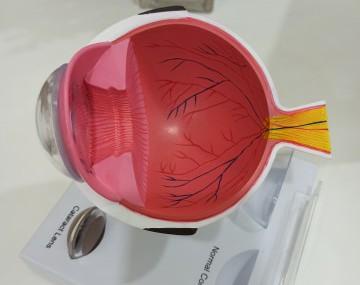 昆明所有近视眼都能做激光近视手术吗?