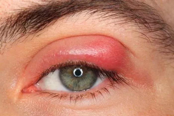 暑假偷偷做个双眼皮,会被发现吗?