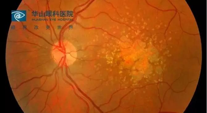 华山眼科专家:黄斑病变危害大